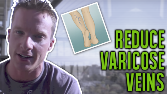 Does Working Out Reduce Varicose Veins In Legs?
